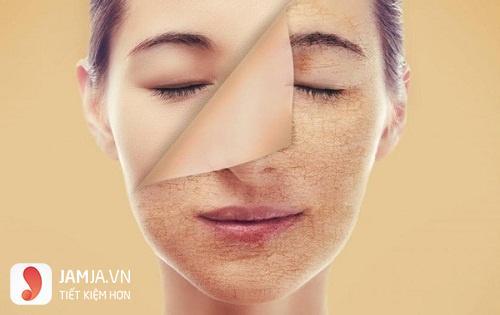 cách phục hồi da mặt bị hư tổn-9