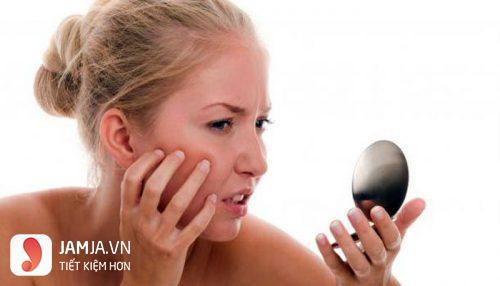 cách chữa da mặt bị dị ứng mỹ phẩm 5
