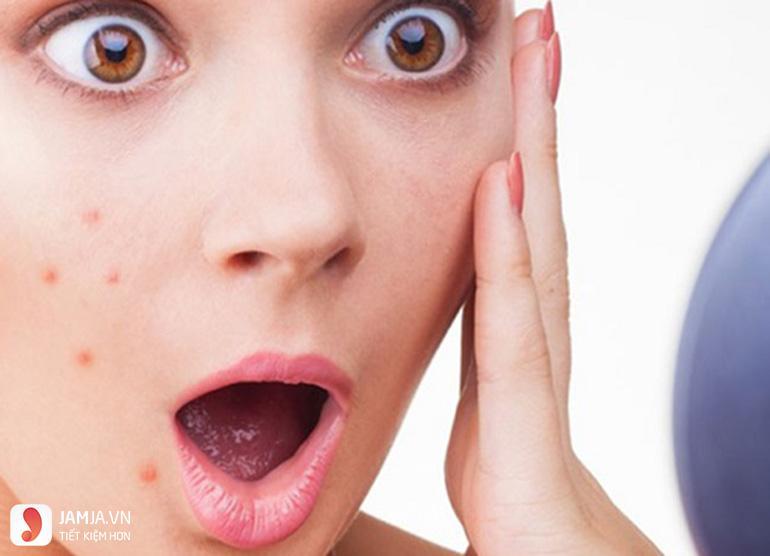 Cách chữa da mặt bị dị ứng mỹ phẩm-1