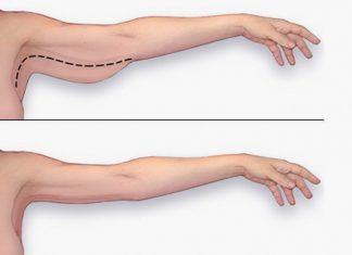 Cách làm thon gọn bắp tay nhanh nhất