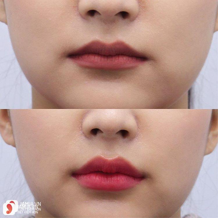 Xăm môi có gây hại gì không? 1