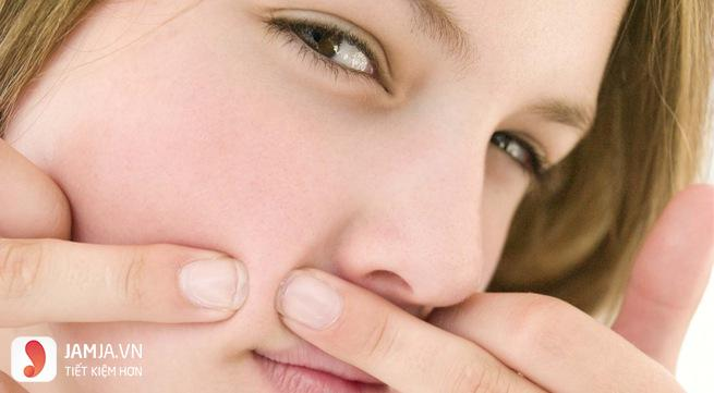 Nguyên nhân của mụn đầu đen và lỗ chân lông to 2