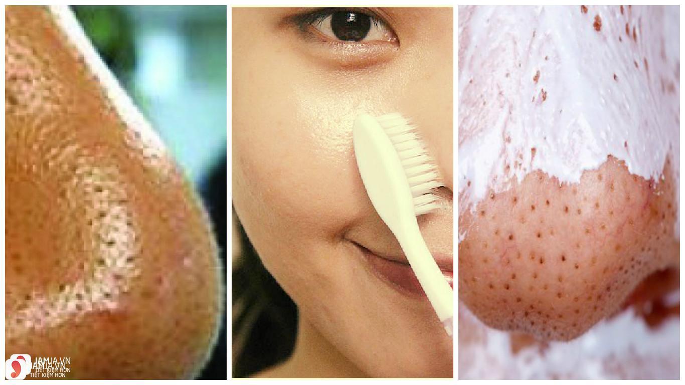 Cách trị mụn đầu đen ở mũi bằng kem đánh răng 3