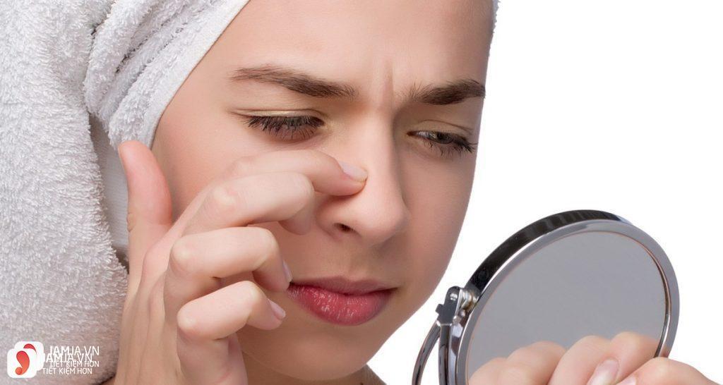 Da mụn có nên dùng kem dưỡng ẩm?