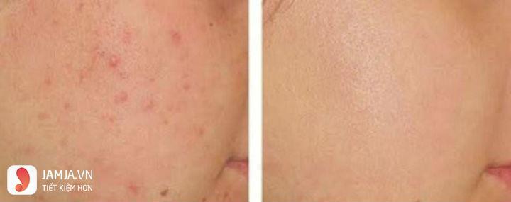 Shiseido Pimplit 3