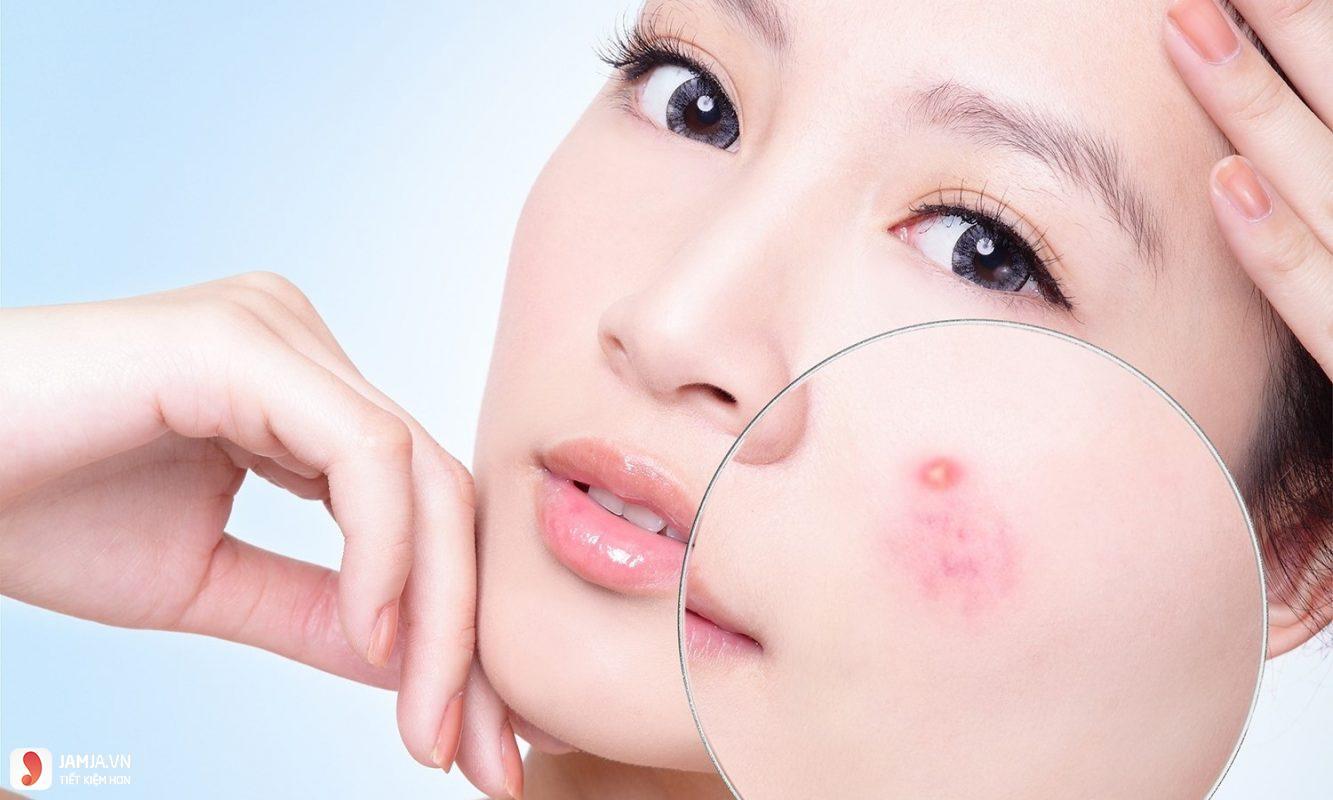 Nhận biết các loại mụn trên da