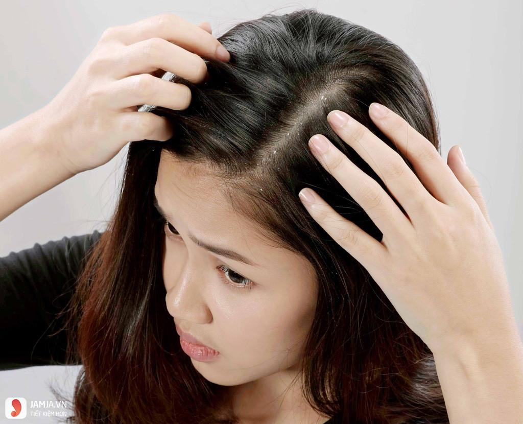 Hiện tượng da đầu xuất hiệu gàu 1