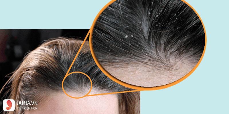 Hiện tượng da đầu xuất hiệu gàu 2