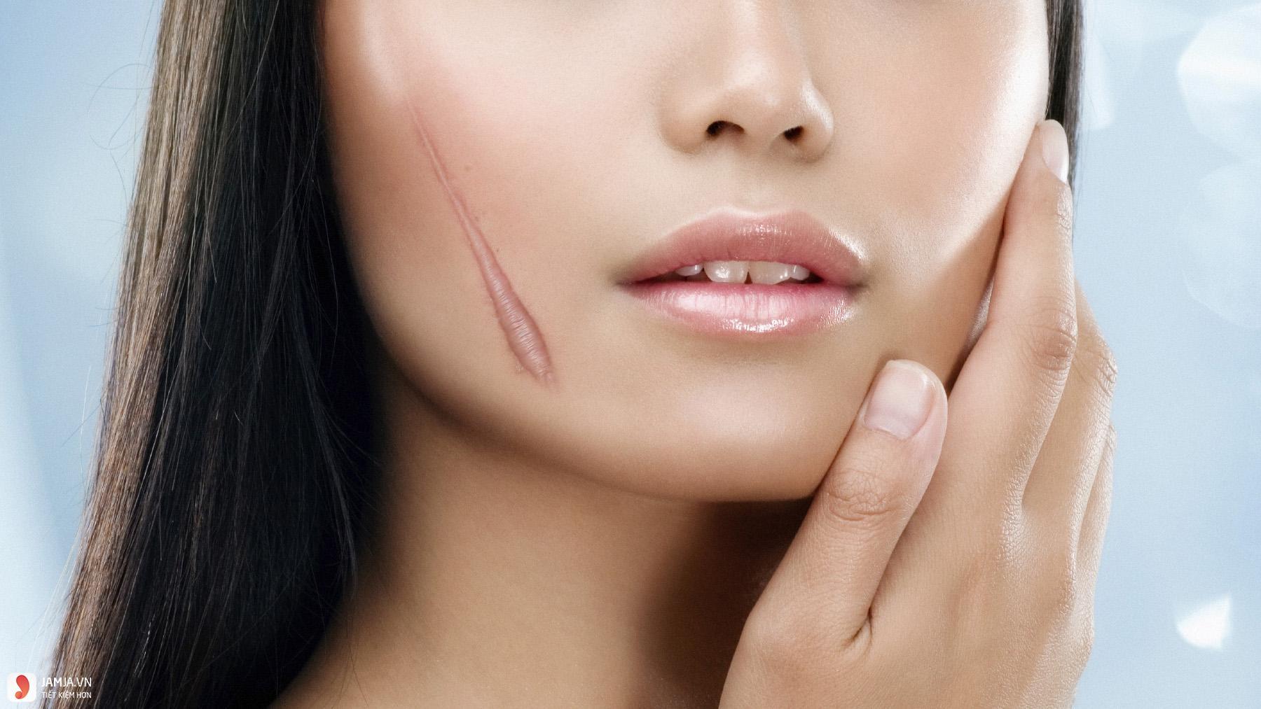 nguyên nhân hình thành sẹo lồi trên da