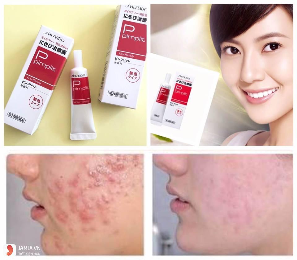 Kem trị mụn Shiseido Pimplit 3