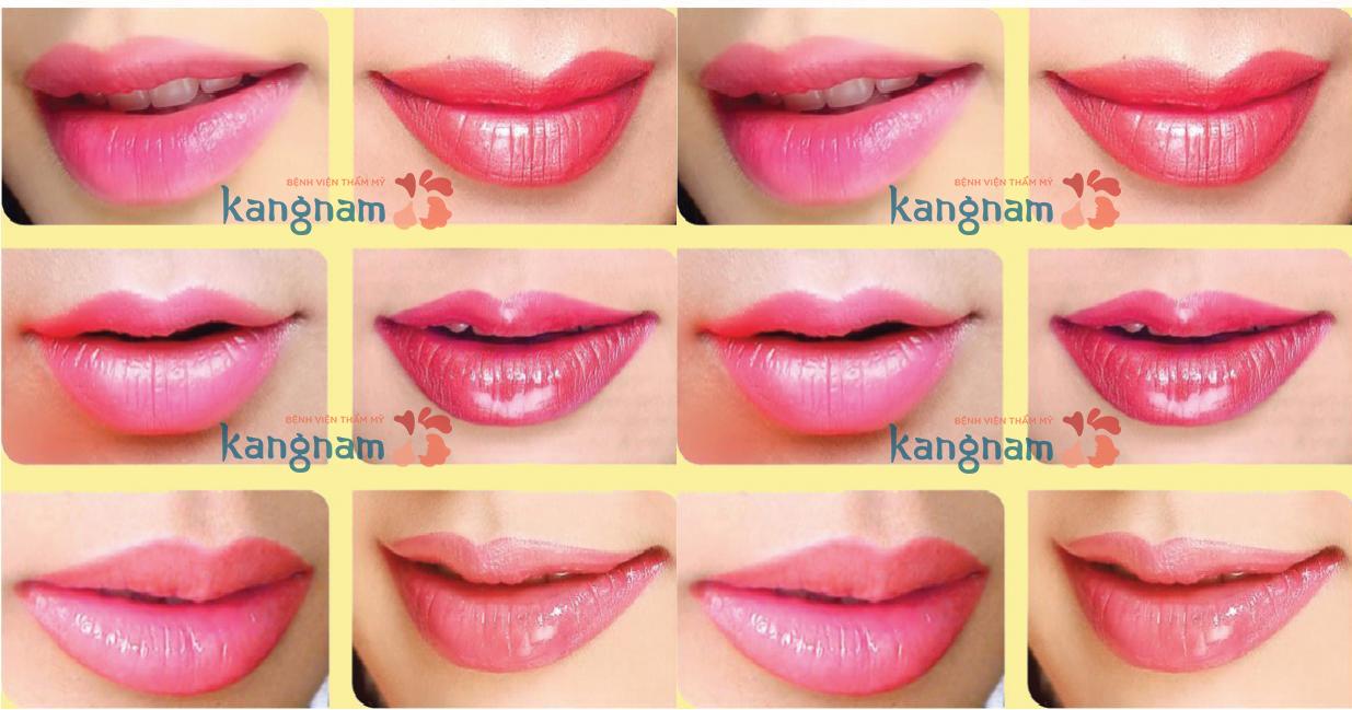 phun môi tại bệnh viện thẩm mỹ Kangnam ảnh2