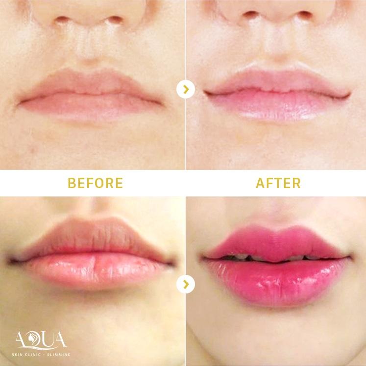 phun xăm môi tại Aqua Skin Clinic