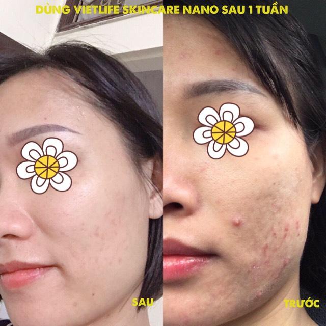 review Vietlife Skincare Nanon