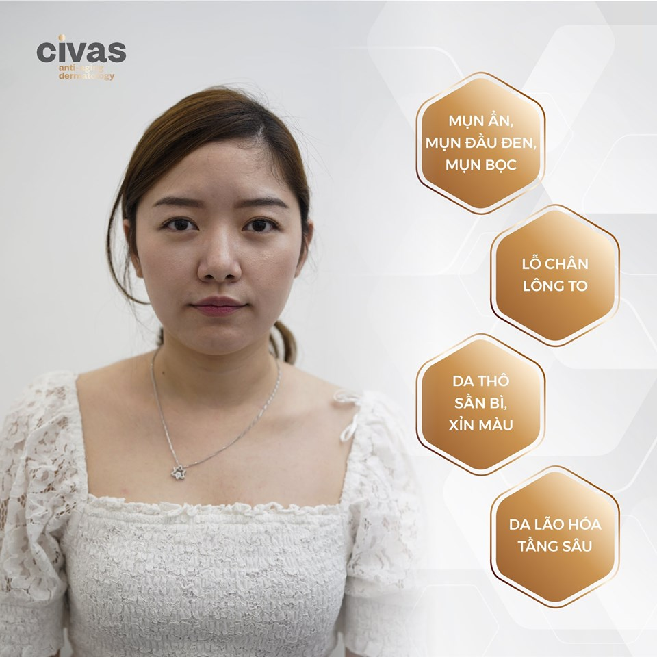 trị mụn CIVAS ANTI-AGING CENTER