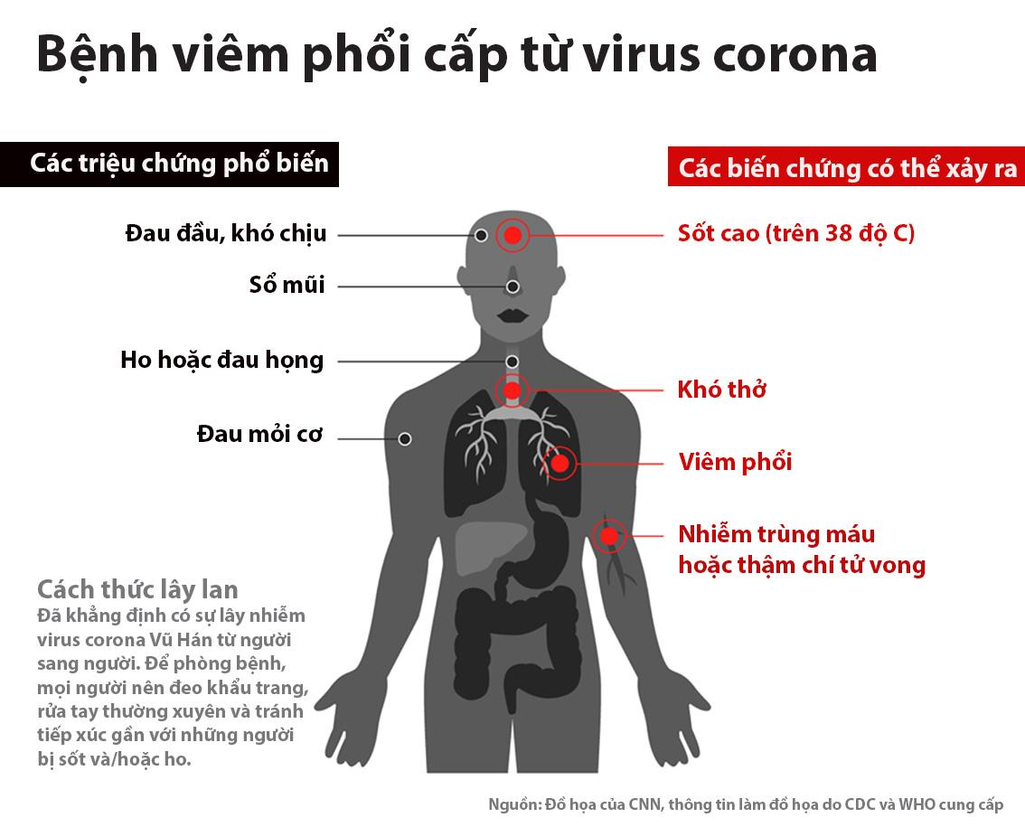 Triệu chứng nhiễm virut Corona